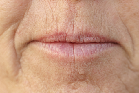 Smoker's lines lip wrinkles on mature woman's mouth