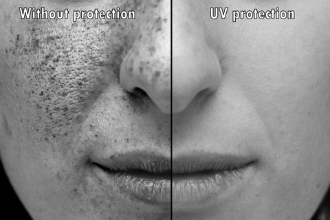Effects of sun damage on skin of a young woman anti aging anti wrinkle treatment and prevention