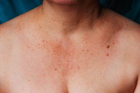 Décolleté (Chest and Neck Area) of an older woman bearing wrinkles, moles, and age spots.