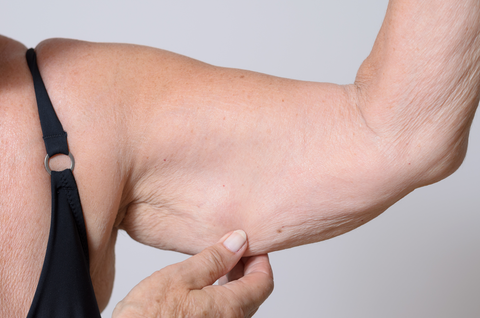 Elderly lady displaying the loose skin or flab due to ageing on her upper arm