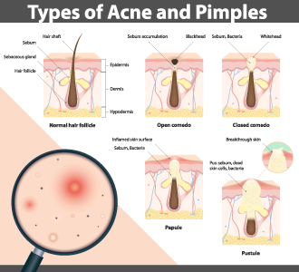 Different types of acne and pimples infographic