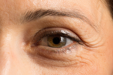 Woman's eye with crow's feet and under-eye wrinkles