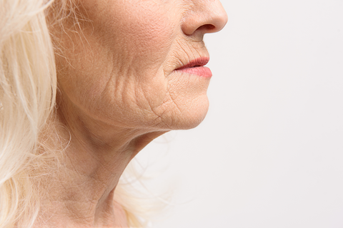 Mature old woman with saggy neck, flappy neck, excess skin turkey neck