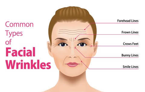 Infographic common facial wrinkles: forehead lines, frown lines, crow's feet, bunny lines, smile lines