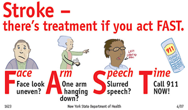 How to Handle and Treat a Stroke FAST