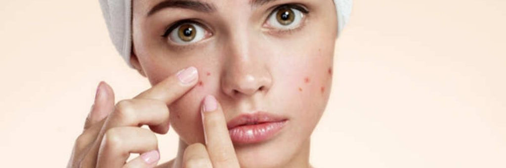 Teen Acne: Causes, Effective Treatment and Preventive Tips