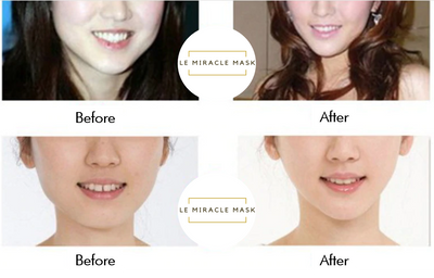 Copy of Le Miracle Mask