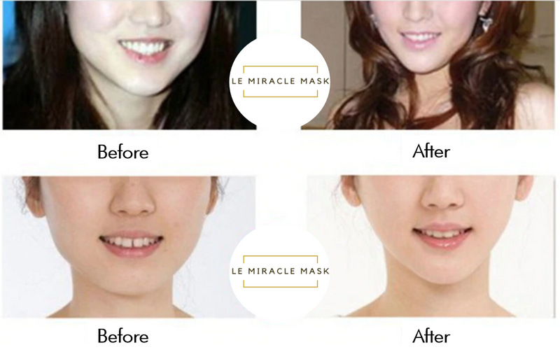 Le Miracle Mask
