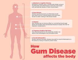 national gum care month