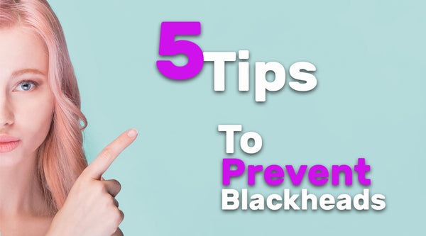 5 Tips To Prevent Blackheads