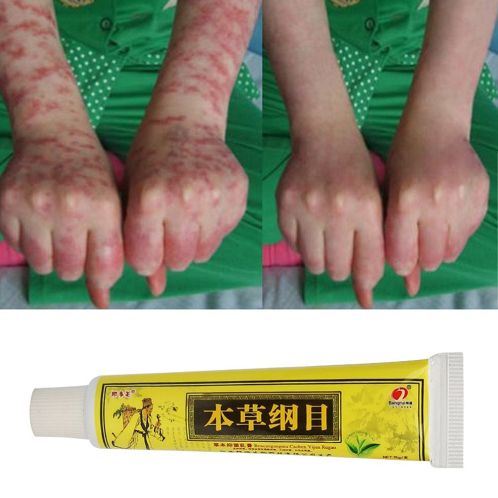 MilkySkinForever Natural Herbal Cream for Eczema Dermatitis Scabies Itching Tinea Skin Care 15g
