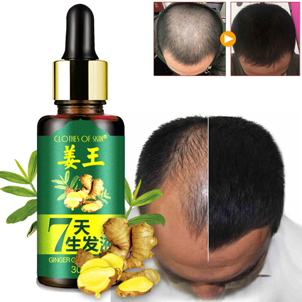 MilkySkinForever 7 Days Hair Growth Care Ginger Essential Oil Nourishing for Dry Damaged Hairs