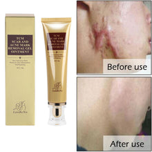 Load image into Gallery viewer, MilkySkinForever 30g Scar Acne Mark Removal Wound Repair Skin Care Treatment Cream Ointment