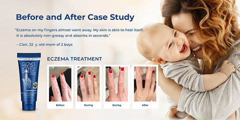 before and after eczema treatment