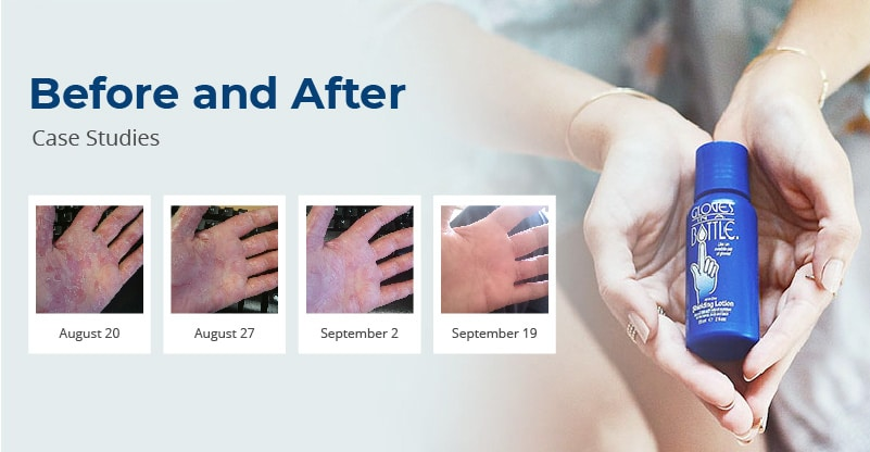 Hand Cream Before And After