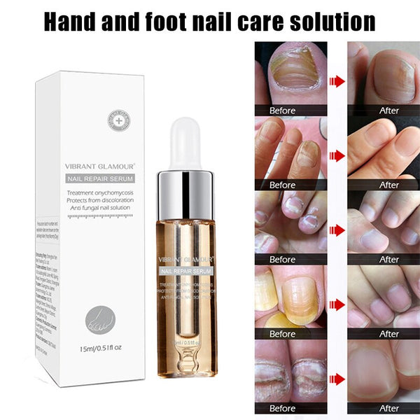 Hand Foot Onychomycosis Nail Treatment Essence Anti Fungus Nourishing Nail Care SK88