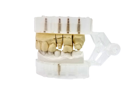 Diamond Articulator 12 Sample Kit