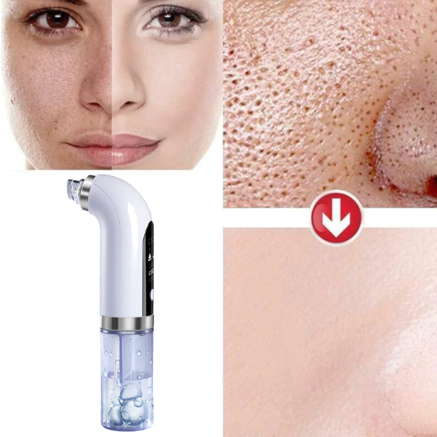 Remover Pore Vacuum Cleaner