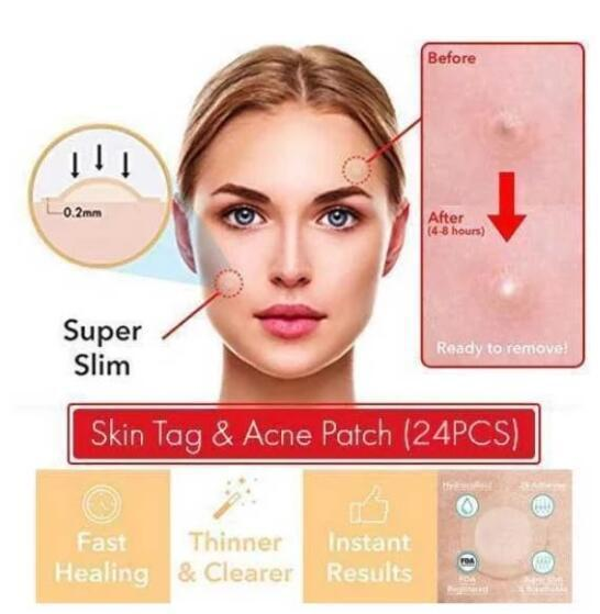 Limited Time! Save 60% - Skin Tag & Acne Patch ( 24 PCS )