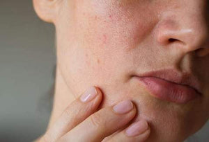 What is Dry Skin, Causes, Types and Useful Remedies