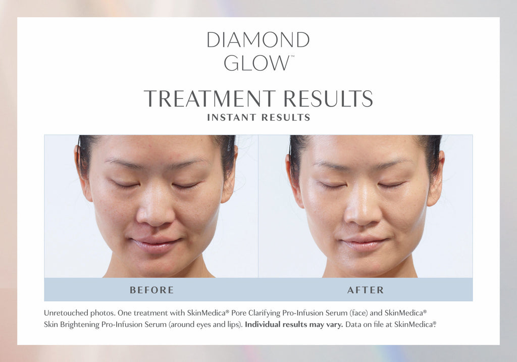 DiamondGlow™ Facial MOTHER'S DAY SPECIAL