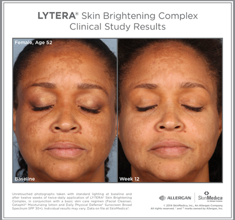 SkinMedica® Lytera® 2.0 Before and After