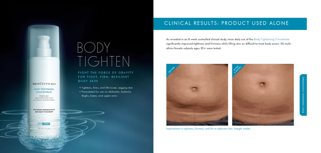 SkinCeuticals® Body Tighten Concentrate Before and After
