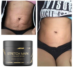 STRETCH MARK & CELLULITE SCRUB