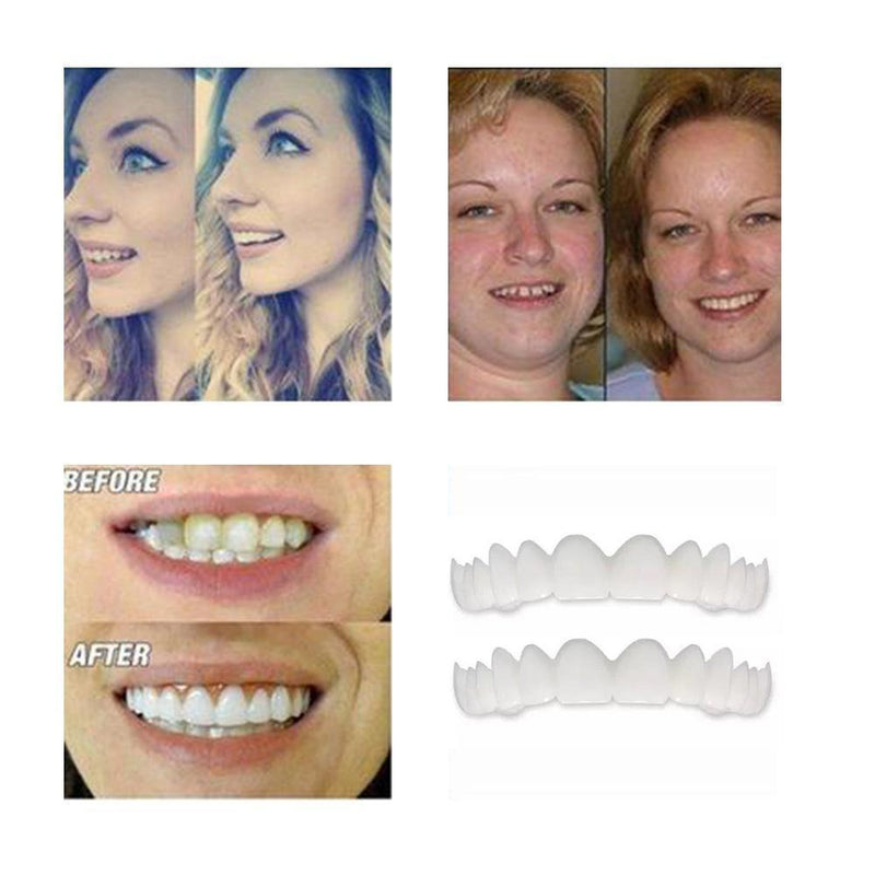 Magic Smile Teeth Brace