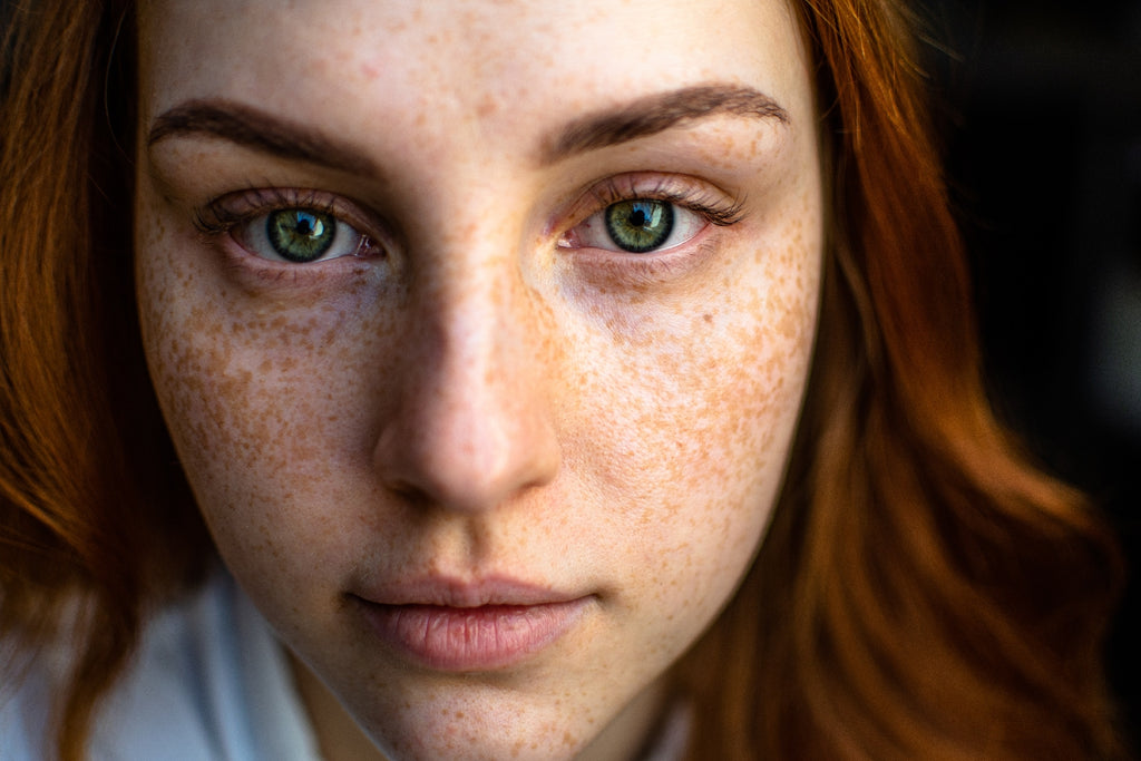red haired woman with freckles looking at camera