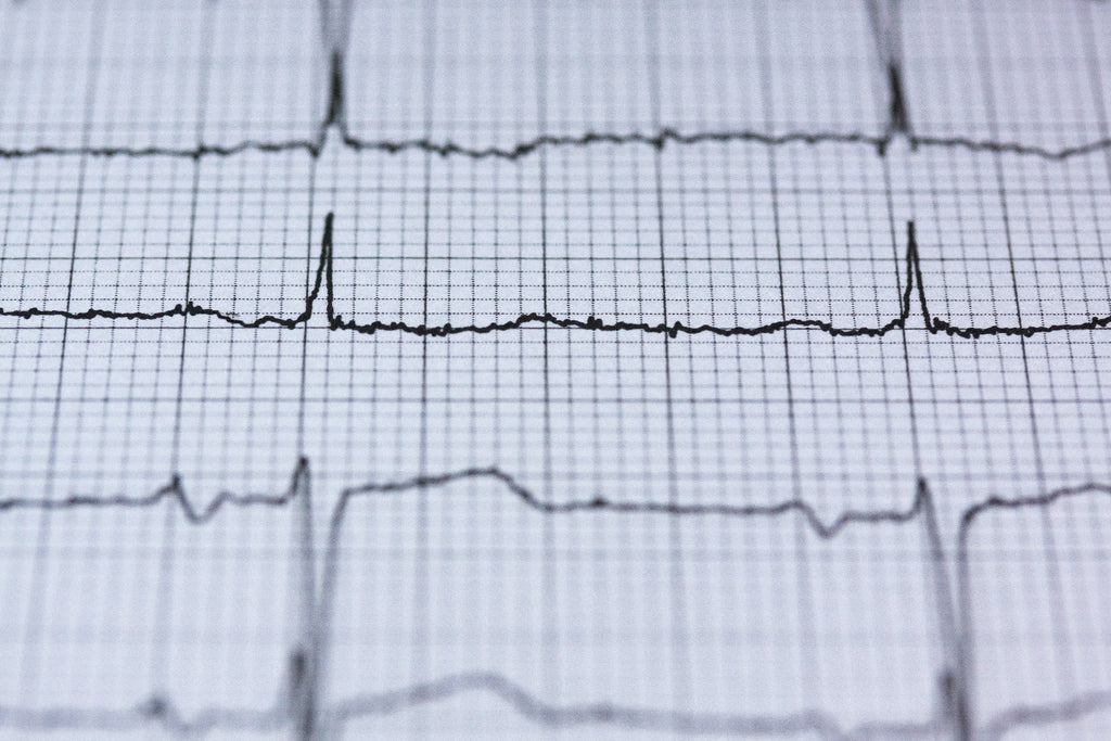 medical print out of heart beat heart rate