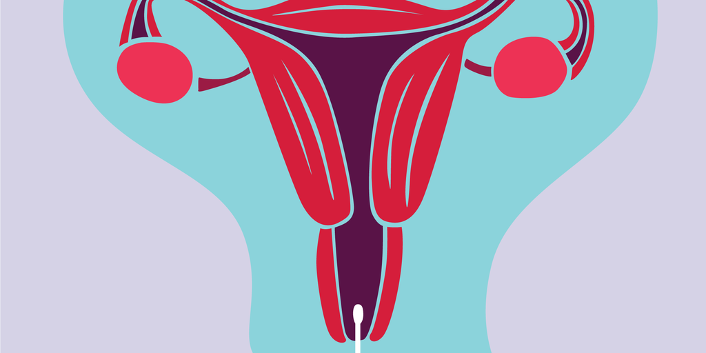 Illustration of the female reproductive organs with a swap taking some cells from the uterus.