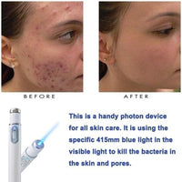 Freckle Dark Spot Scar Acne Removal Pen - KronoWorld Secure Online Shopping