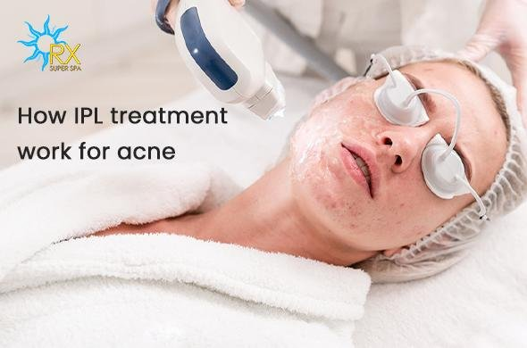How IPL treatment work for acne? | RXSuperSpa