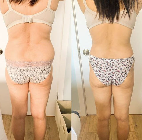 StarBody-Body-Sculpting-Before-After-photo-results