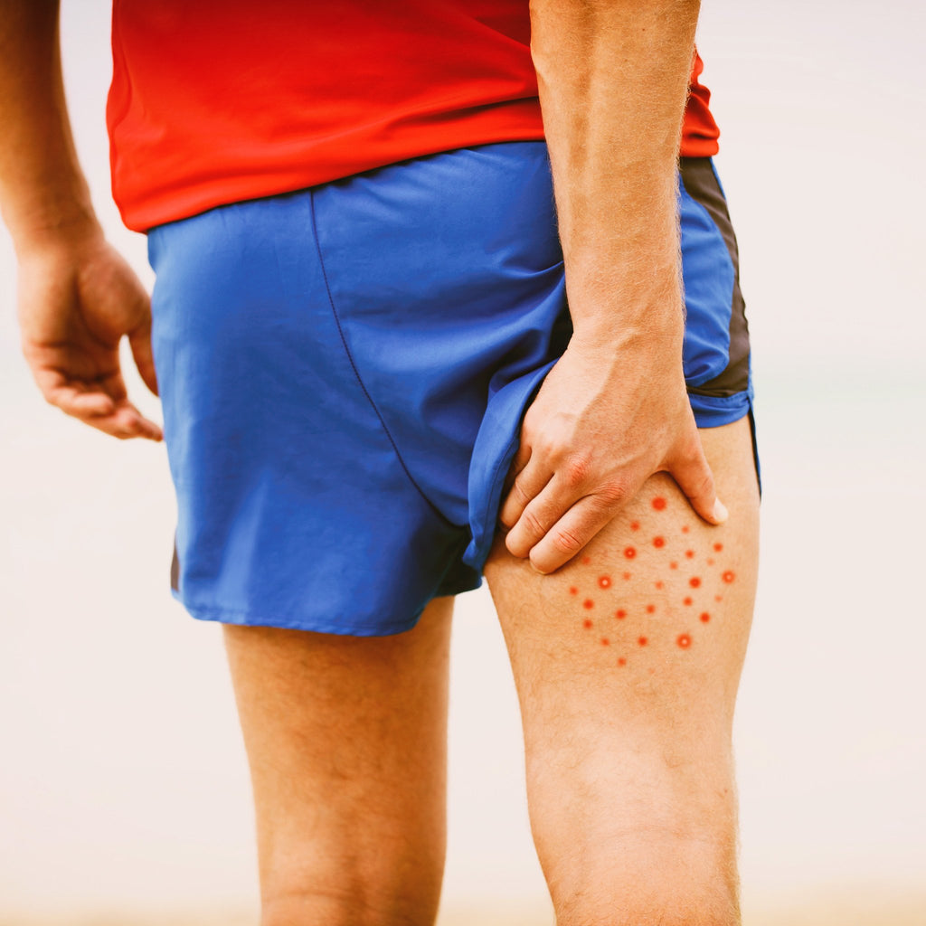 Everything you wanted to know about Chafing