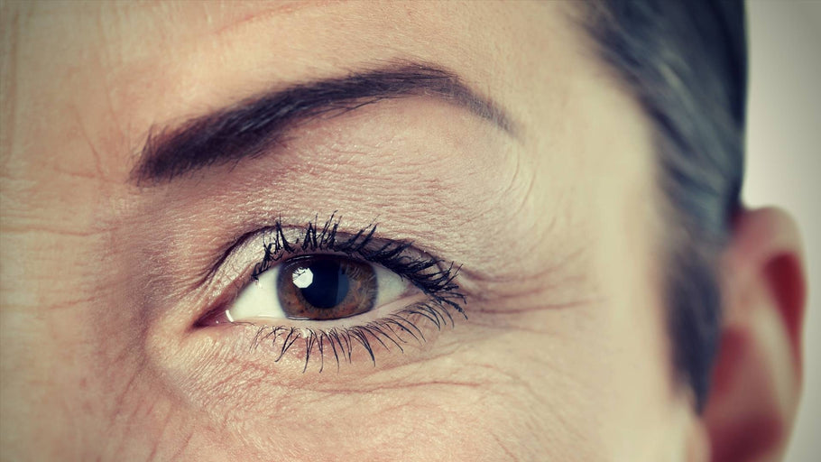 Under Eye Wrinkle Treatment: Options, Side Effects, and Natural Alternatives