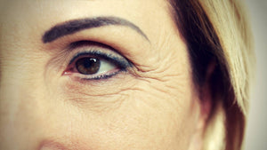 Fine Lines And Wrinkles: Causes, Prevention, And Treatment Strategies
