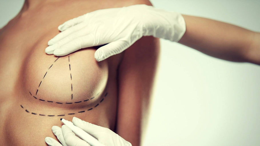 Breast Lift without Implants: All Your Options Reviewed for Effectiveness