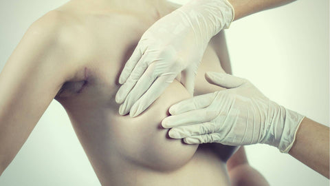 Breast Implant Removal: Key Things You Must Know Before Going into Surgery