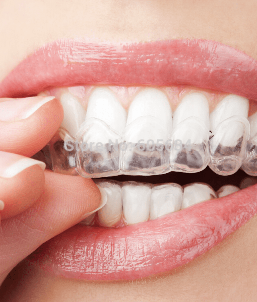 MyPearly Whites | Teeth Whitening Kit – Promotion