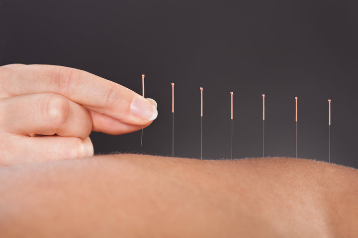 files/bigstock-Acupuncture-Treatment-63623578.jpg