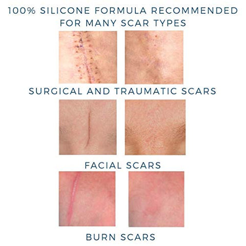 MD Performance Ultimate Scar Formula - Advanced Silicone Scar Gel for Face, Body, Surgical, Burn, Acne and C Section Scar Treatment, Clinically Proven to Improve Scars within 2-3 Months