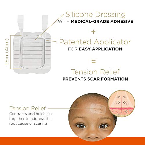 Embrace Active Scar Defense for New Scars, FDA-Cleared Silicone Scar Sheets (Size Small (1.6 Inch)) 30 Day Supply
