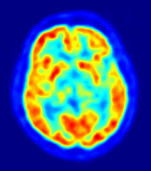 Brain Imaging Scan