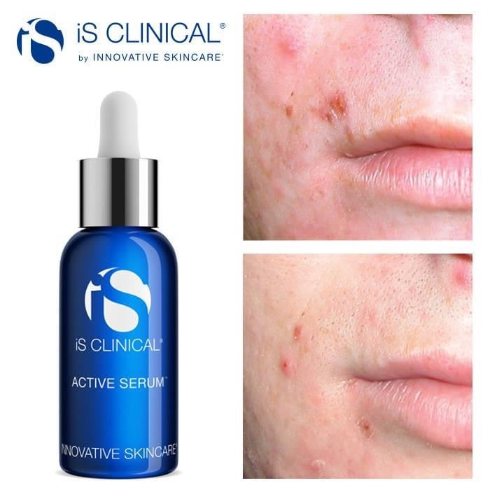 ACTIVE SERUM 15 ML / 30 ML