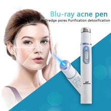 Load image into Gallery viewer, Face Acne Laser Pen gotolovely