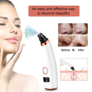 Luna Blackhead Extraction Suction Tool