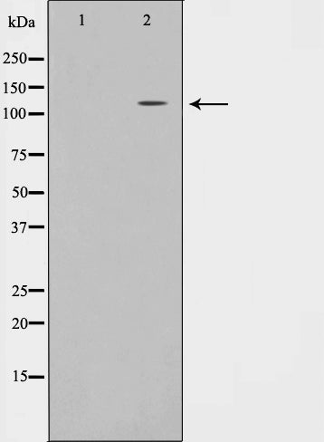 Western blot analysis on JK cell lysate using EPHA7 Antibody,The lane on the left is treated with the antigen-specific peptide.
