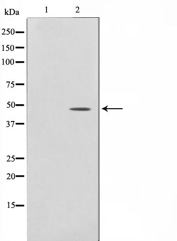 AF0570 staining LOVO by IF/ICC. The sample were fixed with PFA and permeabilized in 0.1% Triton X-100,then blocked in 10% serum for 45 minutes at 25¡ãC. The primary antibody was diluted at 1/200 and incubated with the sample for 1 hour at 37¡ãC. An  Alexa Fluor 594 conjugated goat anti-rabbit IgG (H+L) Ab, diluted at 1/600, was used as the secondary antibod